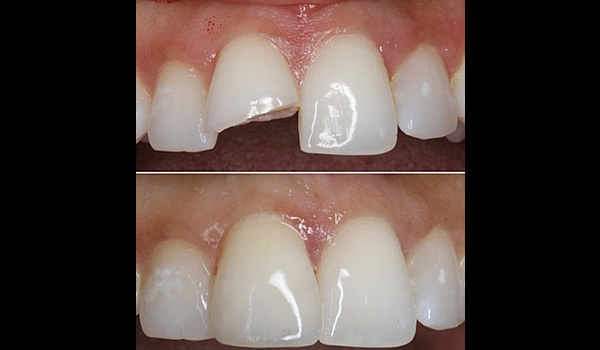 Fig. 2:  Restauración anterior directa composite.