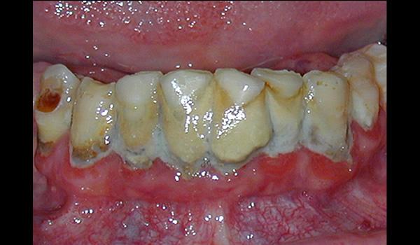 Periodontitis (2)