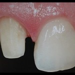 Fig. 3: Muñón dentario