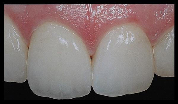 Fig.4 : Prótesis Fija cerámica (corona)