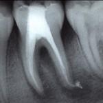 rehab_oral03_endodoncia01