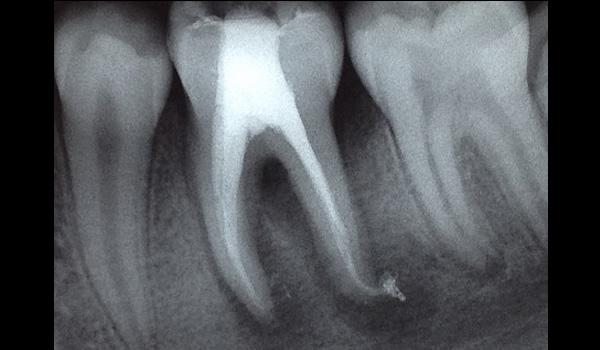 Clínica Endodoncia