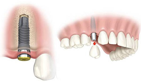 Rehabilitación Oral 01