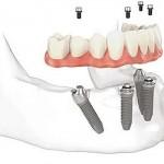 Rehabilitación Oral 02