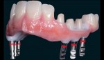 Rehabilitación Oral 04